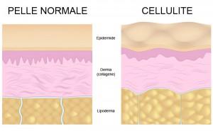 cellulite-schema