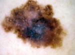 Stessa lesione esaminata allo stereomicroscopio e rivelatasi un MELANOMA SPITZOIDE