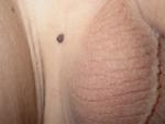 Lesione pigmentata della regione inguinale in bambino di 4 anni