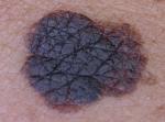 Foto clinica di lesione pigmentata